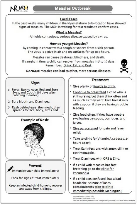 Measles Informational Handout Developed by Nuru Healthcare